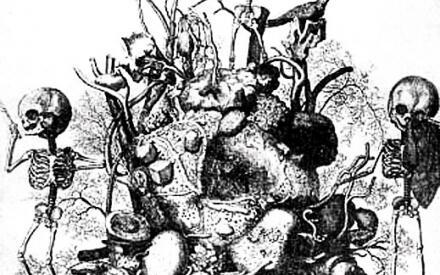 Анатомическая композиция Ф. Рюйша