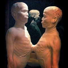 Восковые фигуры сиамских близнецов